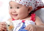 脑瘫儿童的脑瘫治疗方法看一下吧