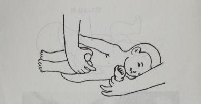 小儿脑瘫的预防方法你知道吗