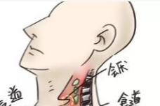 吞咽障碍的康复训练你知道吗