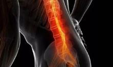 腰椎间盘突出的治疗方法有什么