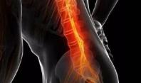 腰椎间盘突出的症状有什么