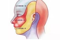 三叉神经痛的治疗方法有啥呢