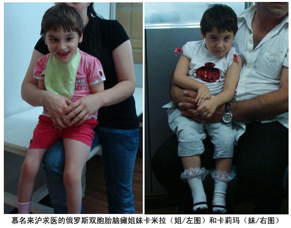 慕名来沪求医的俄罗斯双胞胎脑瘫姐妹