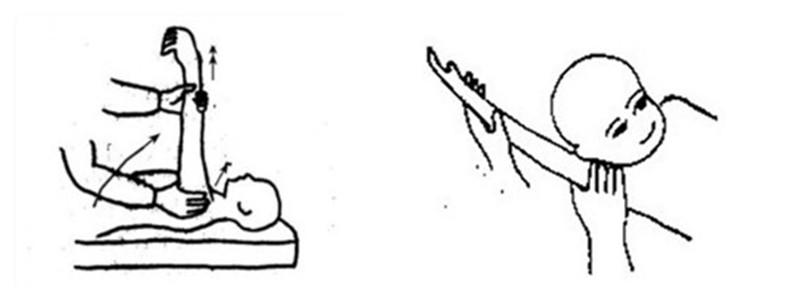痉挛型脑瘫儿童的肩关节训练