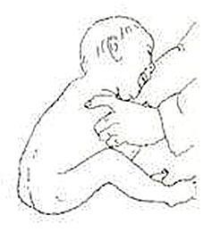 挛型脑瘫儿童的肩关节训练