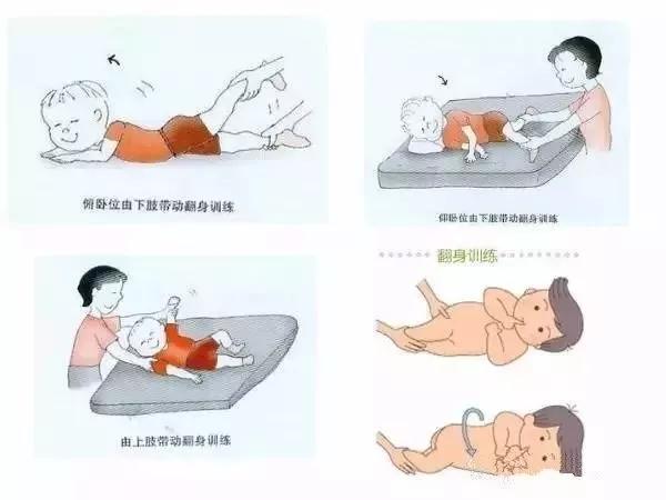 小儿脑瘫的康复训练